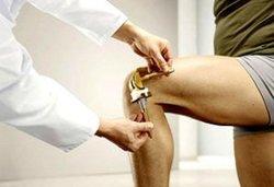 эндопротезирование коленного сустава где делать